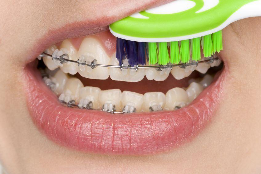 Zahnfleischentzündungen durch Zahnspangen mit richtiger Pflege vermeiden
