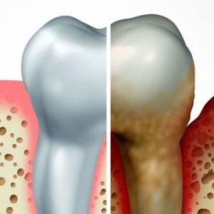 Zahnbelag, Plaque, Zahnstein, Bakterien, Parodontitis, Entzündung, Zahnfleisch